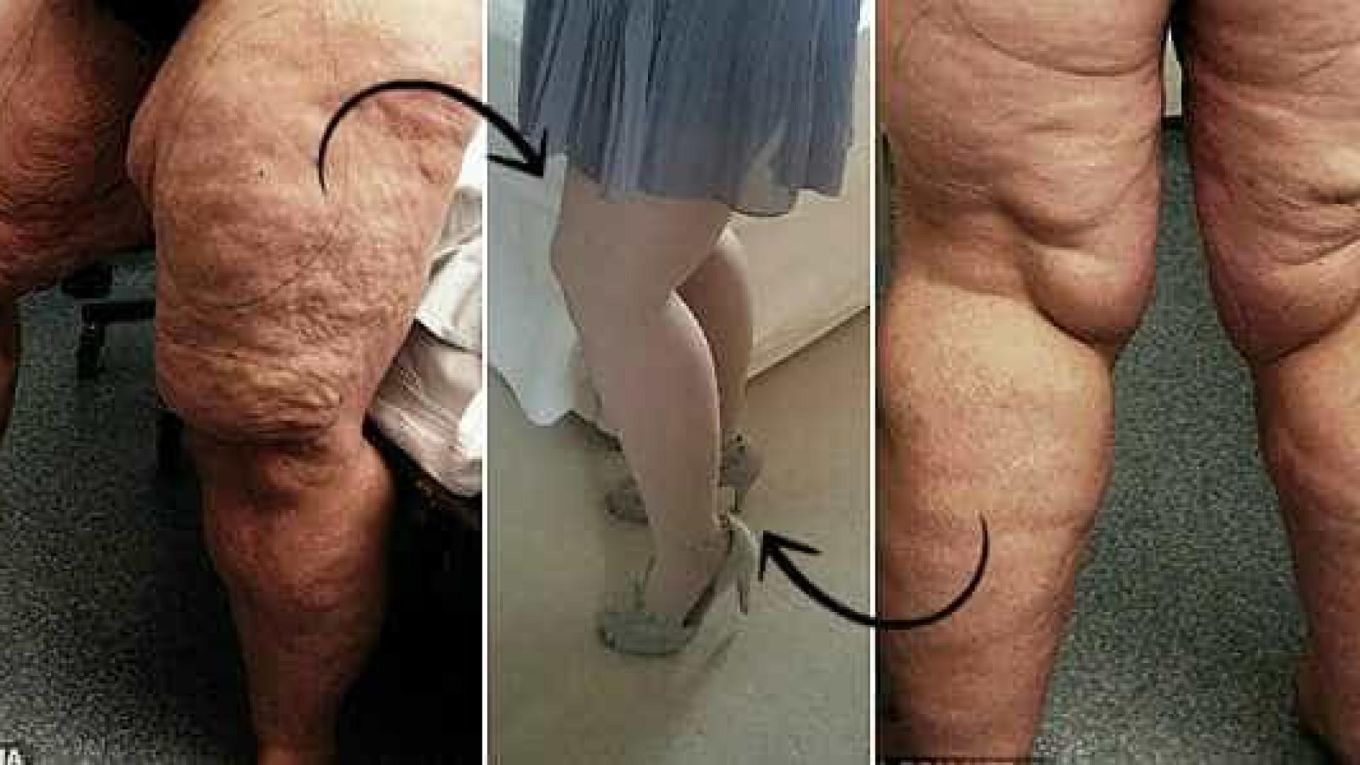 Mulher tem 12 litros de gordura sugados das pernas após reduzir peso