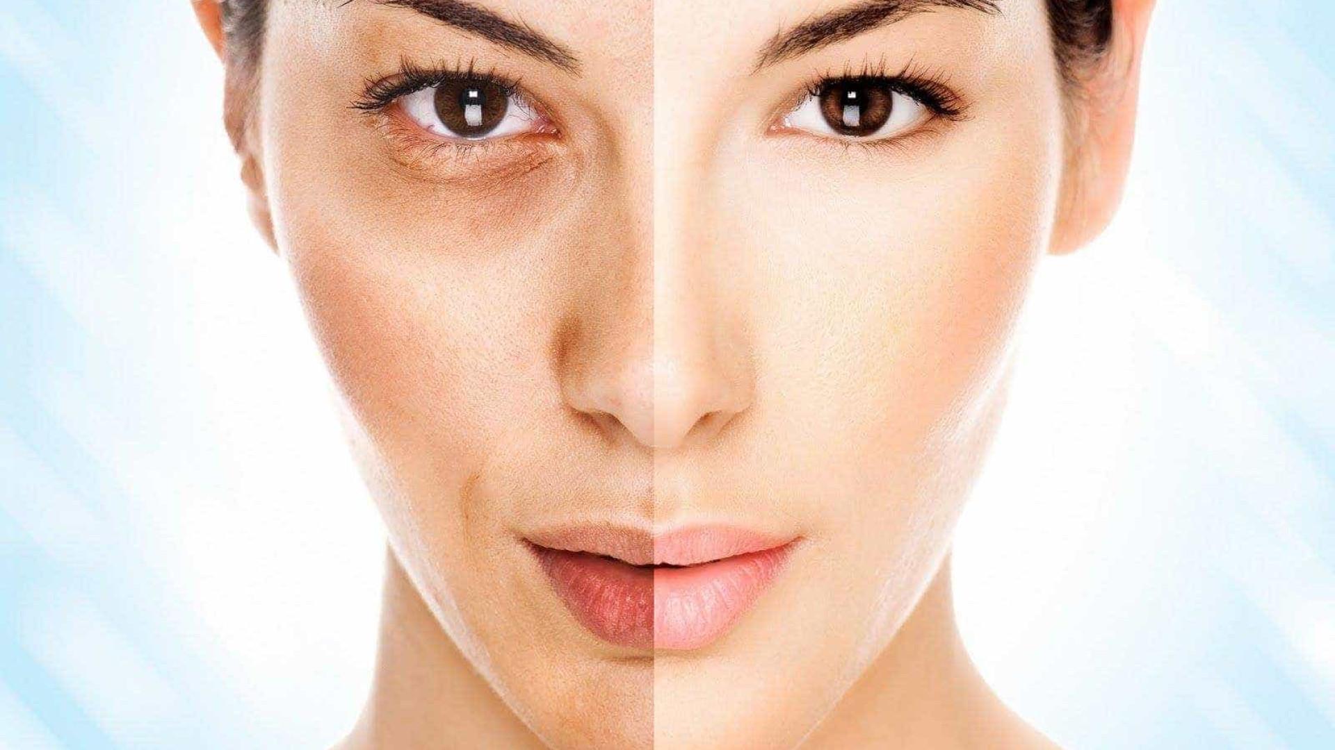 Como resolver os 5 piores problemas de pele