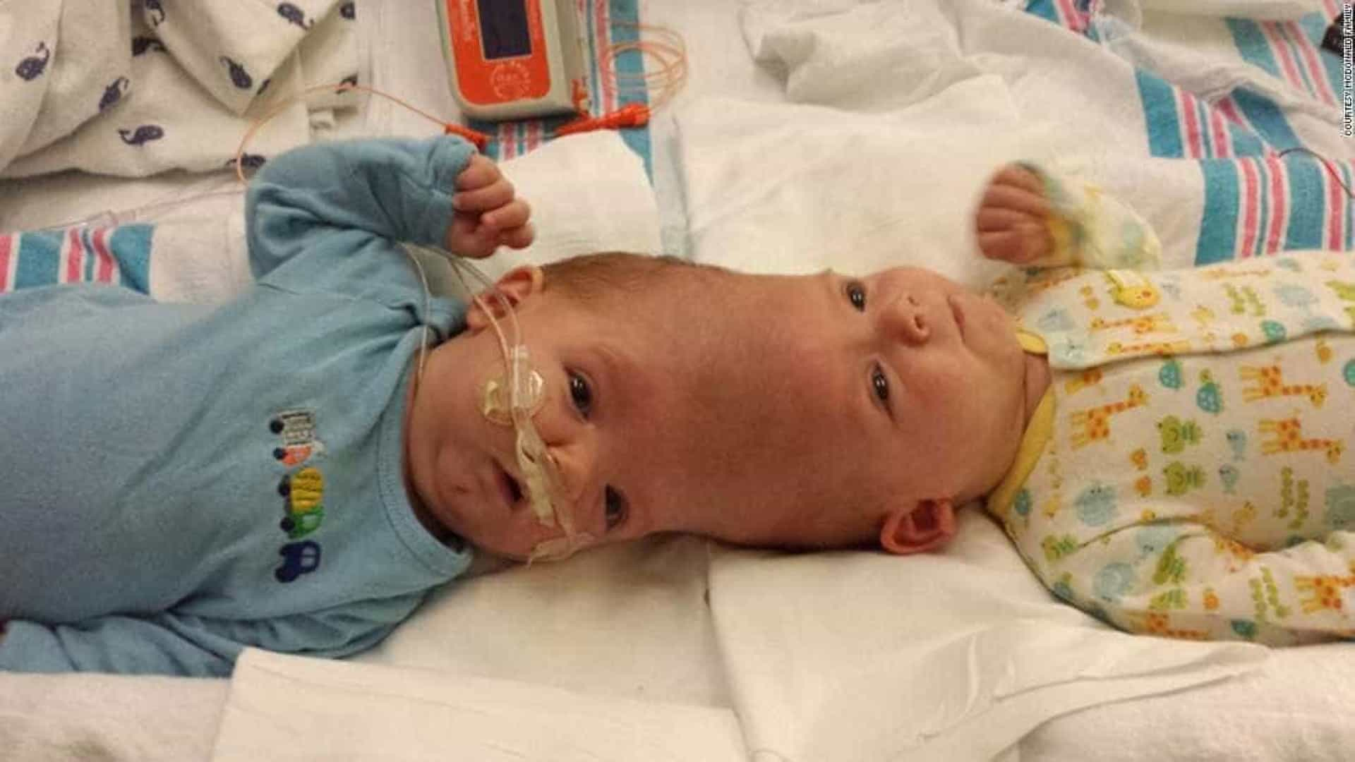 Irmãos siameses são separados após  cirurgia de 27 horas