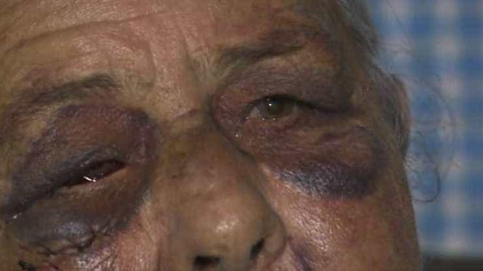 Cuidador é suspeito de estuprar  e espancar idosa de 75 anos