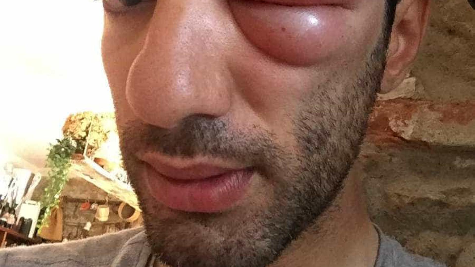 Ciclista fica com rosto desfigurado após picada de inseto; veja