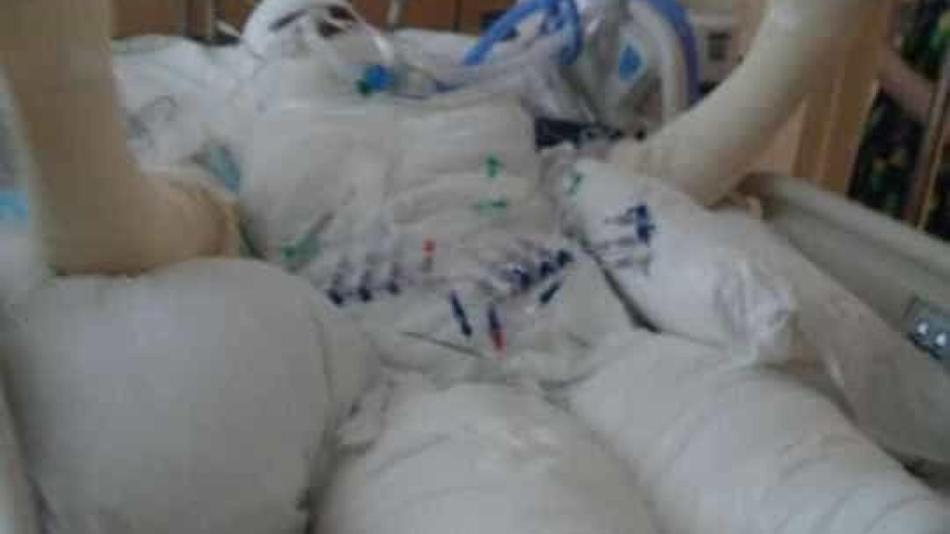 Menina de 12 anos tem 49% do corpo queimado em 'desafio do fogo'