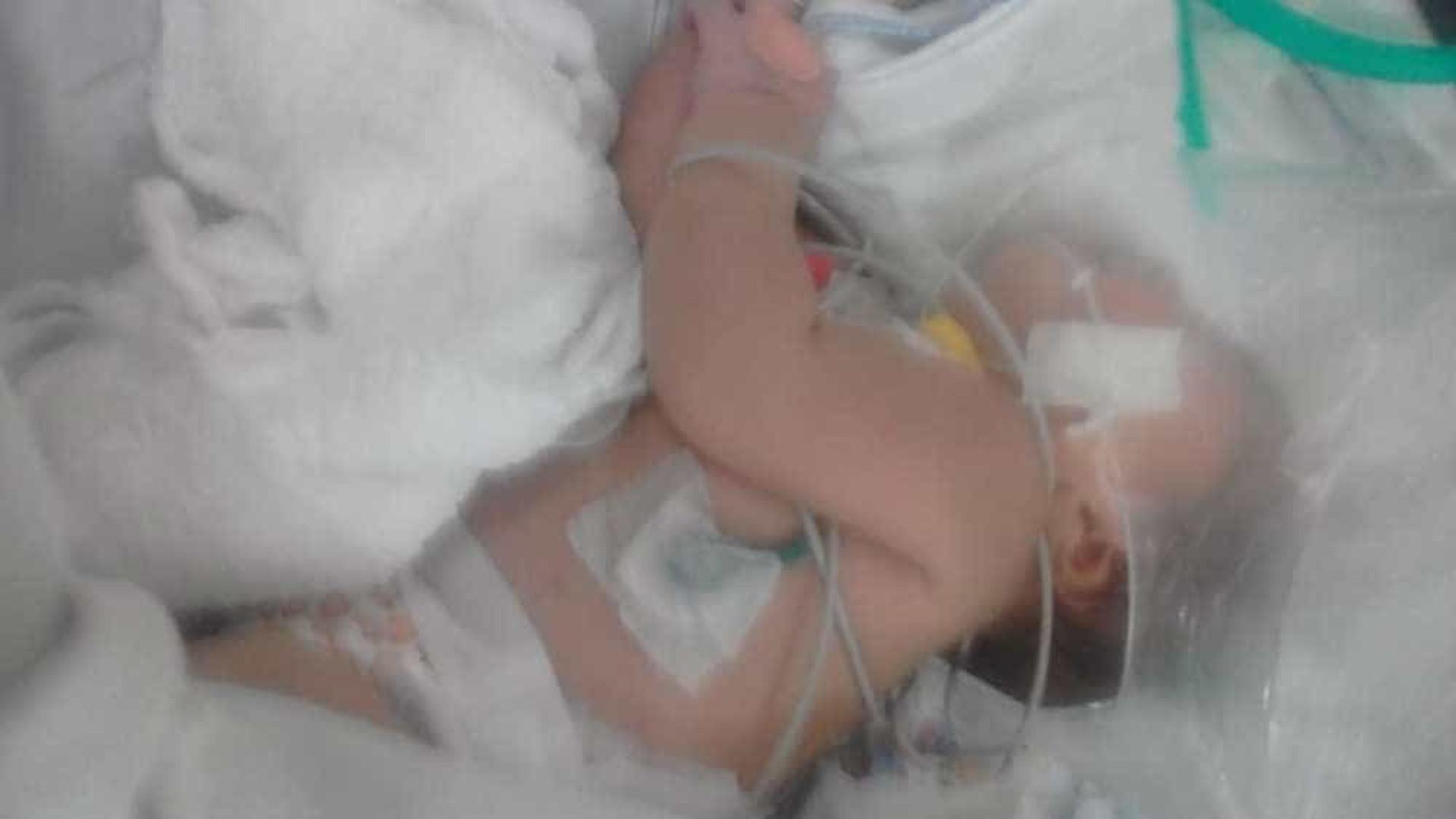 Pediatra diz que bebê chegou ao hospital com escorpião preso ao corpo