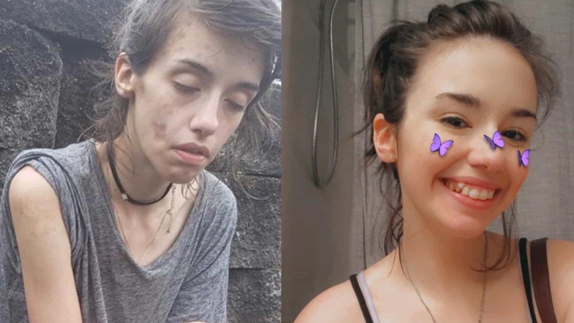 A impressionante imagem do 'antes e depois' de uma viciada em drogas