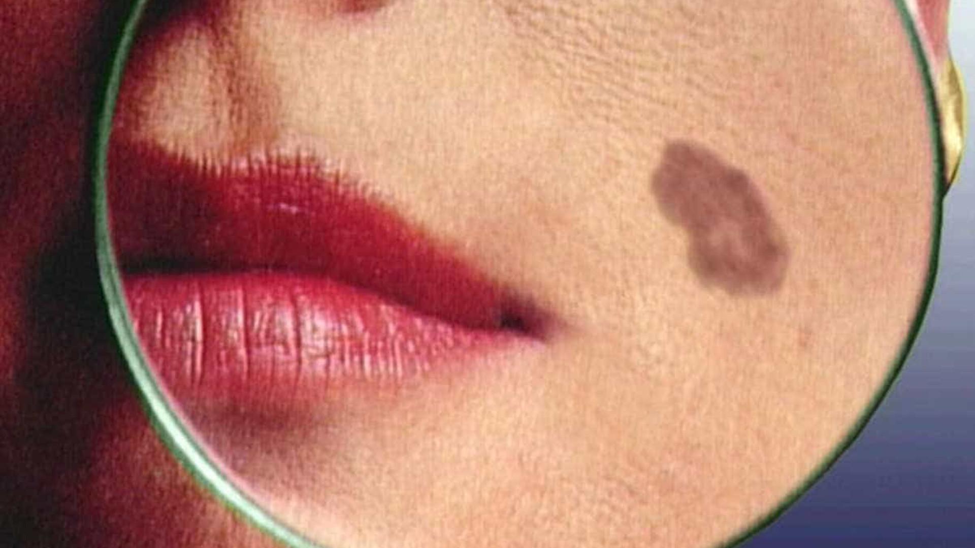 Molécula de bactéria marinha pode trazer avanço para tratar melanoma