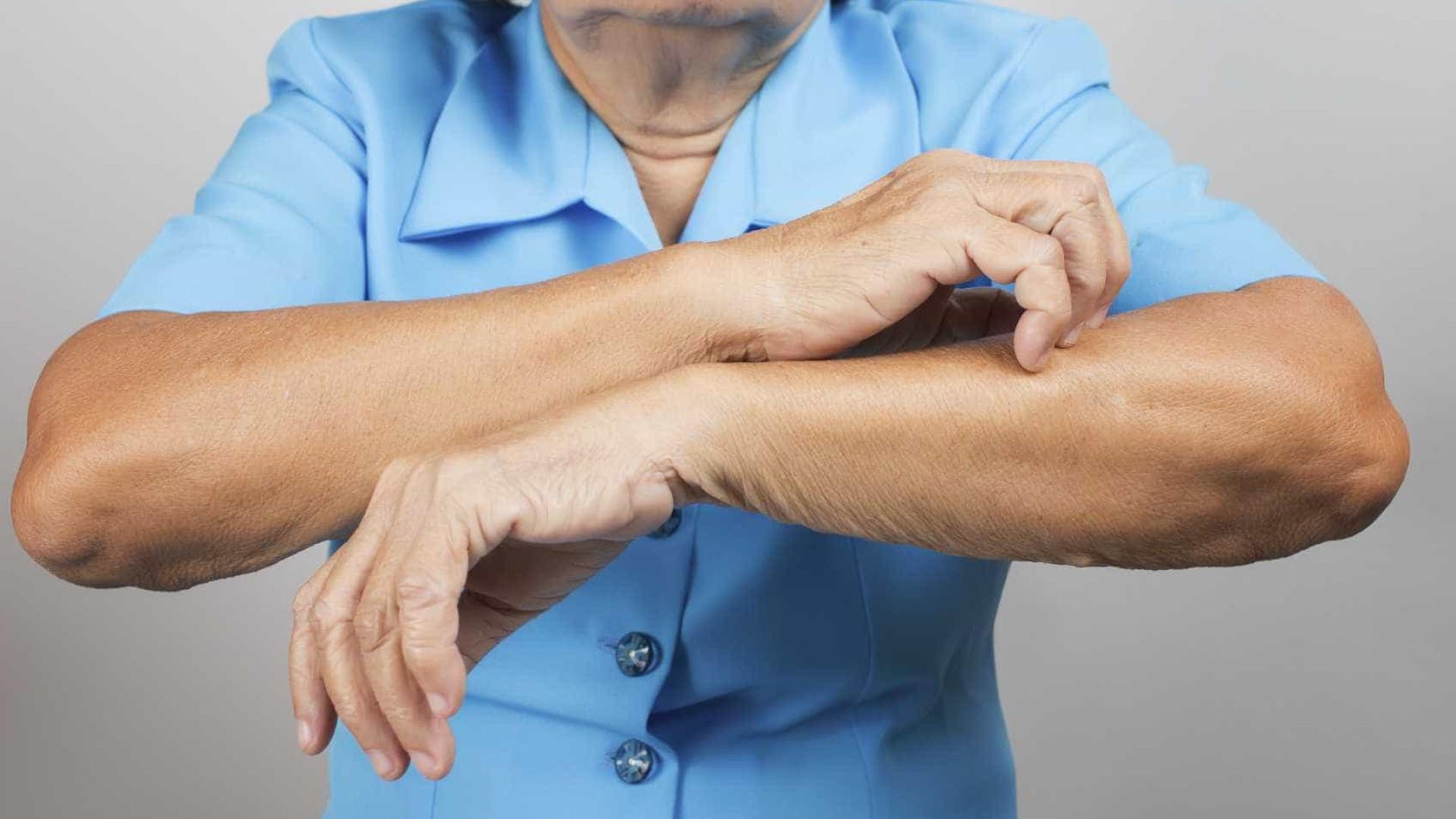 Psoríase: entenda a doença que causa lesões descamativas na pele