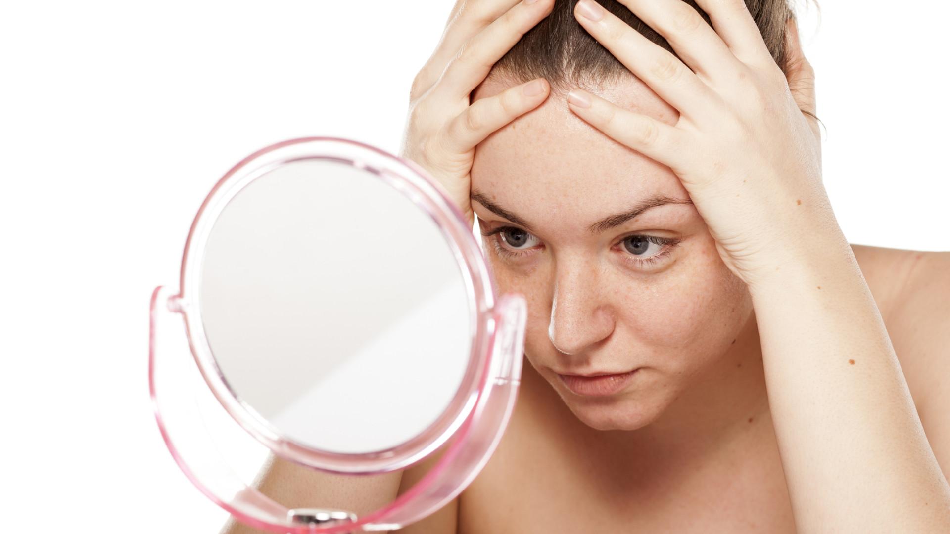 Vacina promissora contra a acne pode deixar paciente imune à condição