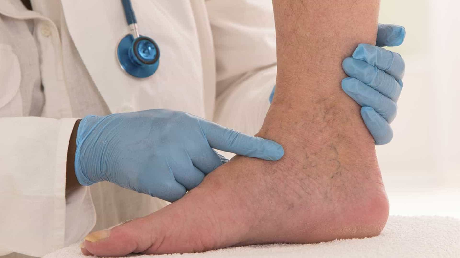 Médicos fazem mutirão de atendimento contra trombose em SP