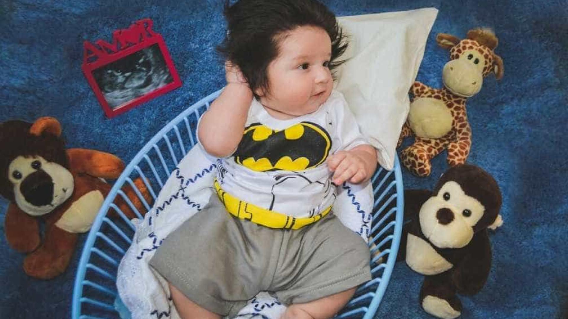 Bebê recebe vacina errada e mãe culpa cabelo