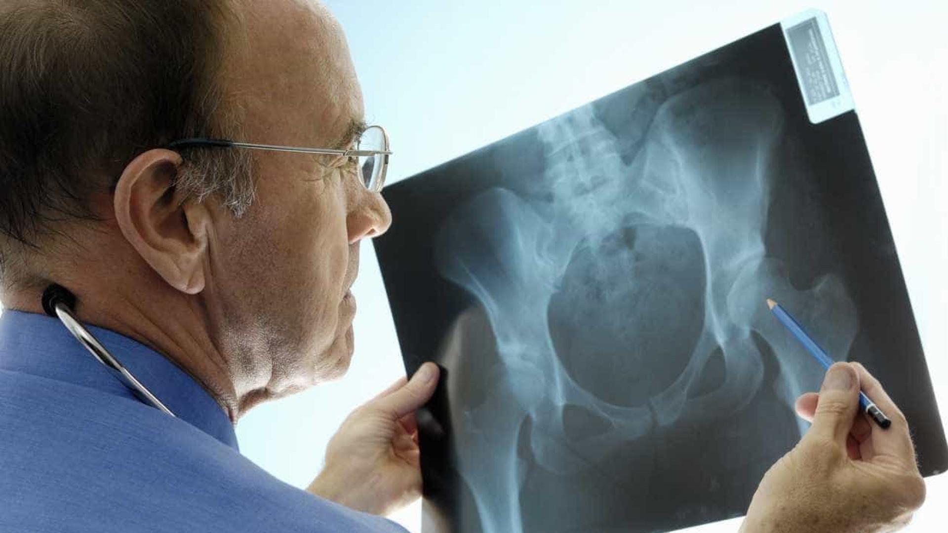 Osteoporose: pesquisadores descobrem novo fator de risco