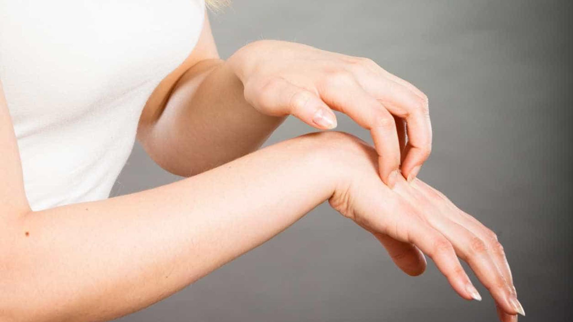 Psoríase e eczema. Como diferem?