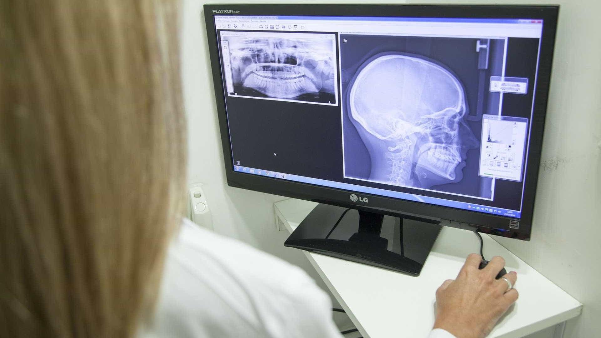 Exames com radiação em crianças crescem e campanha pede uso racional