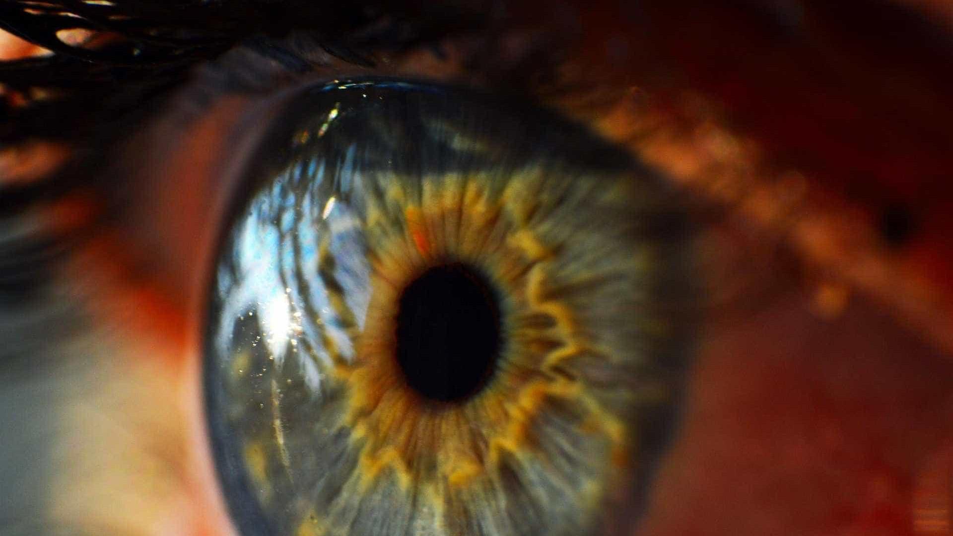 Espera por transplante de córnea cresce no Brasil