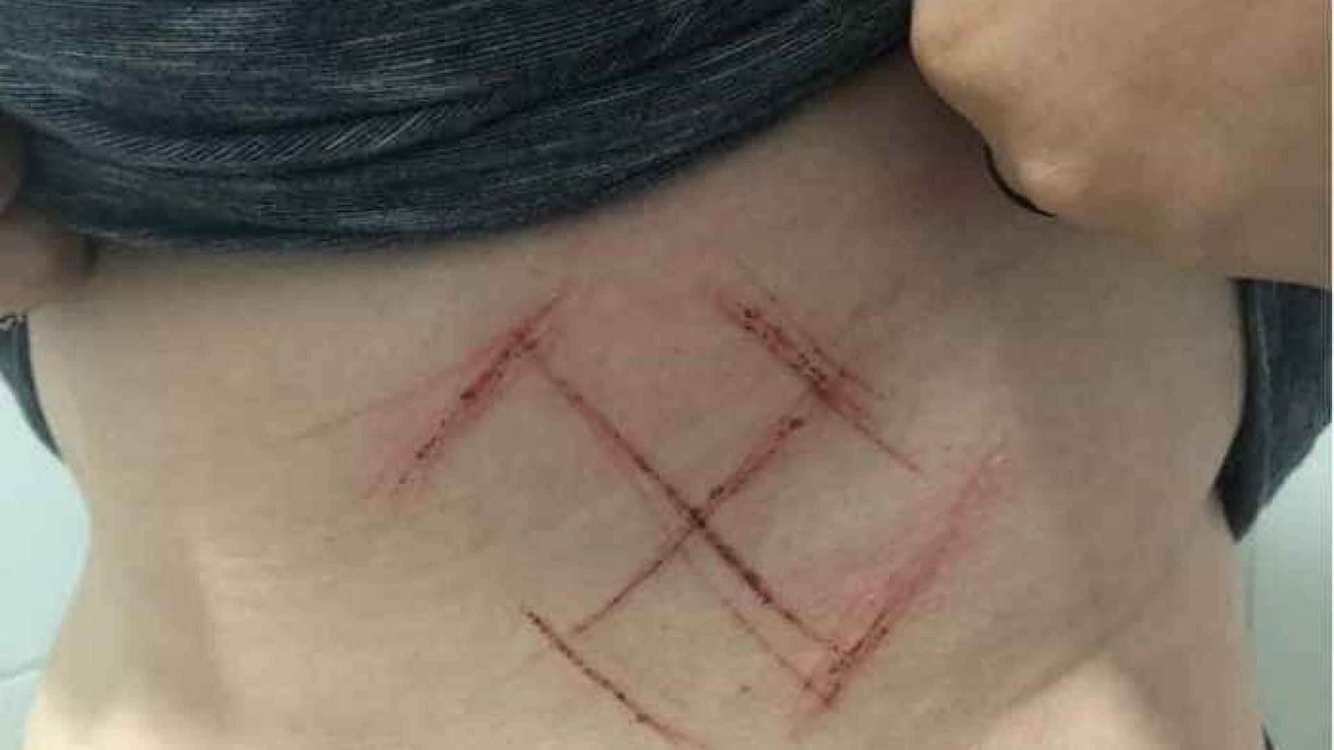 Jovem tem suástica marcada na pele por usar adesivo de #EleNão