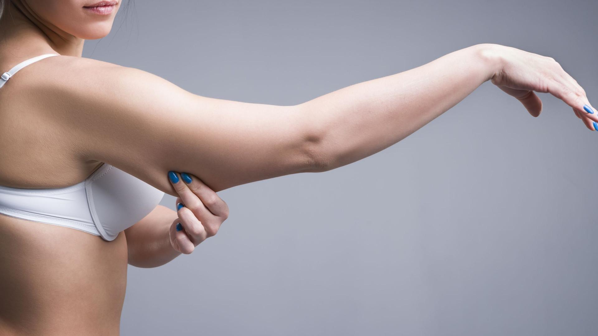 Três dicas simples para se livrar de vez da gordura nos braços