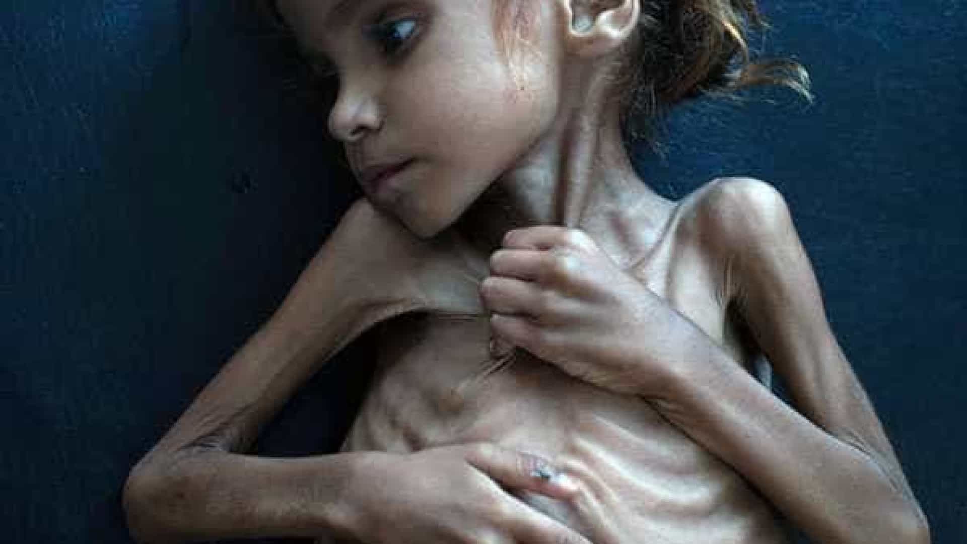 Morre menina símbolo de crise humanitária no Iêmen