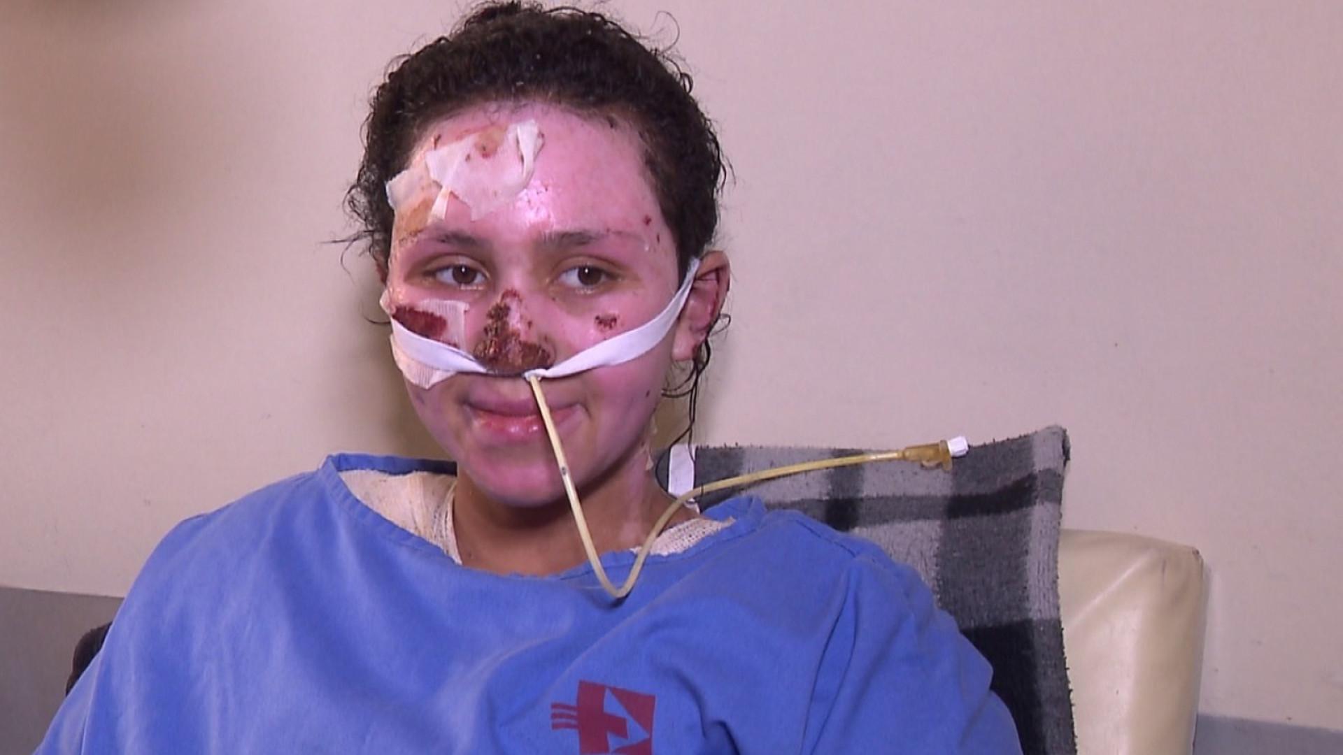 Morre a menina que teve 60% do corpo queimado ao salvar irmão