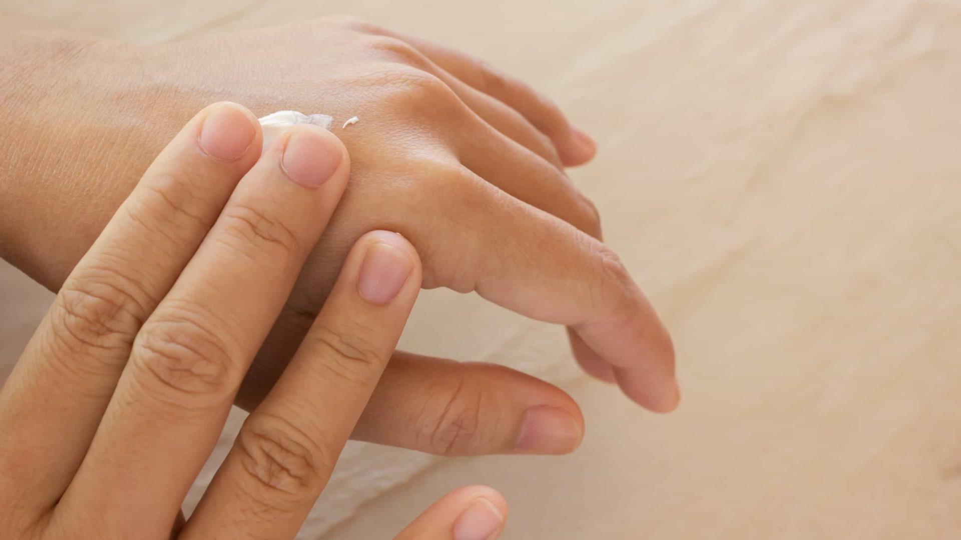 O que explica essa epidemia de peles sensíveis?