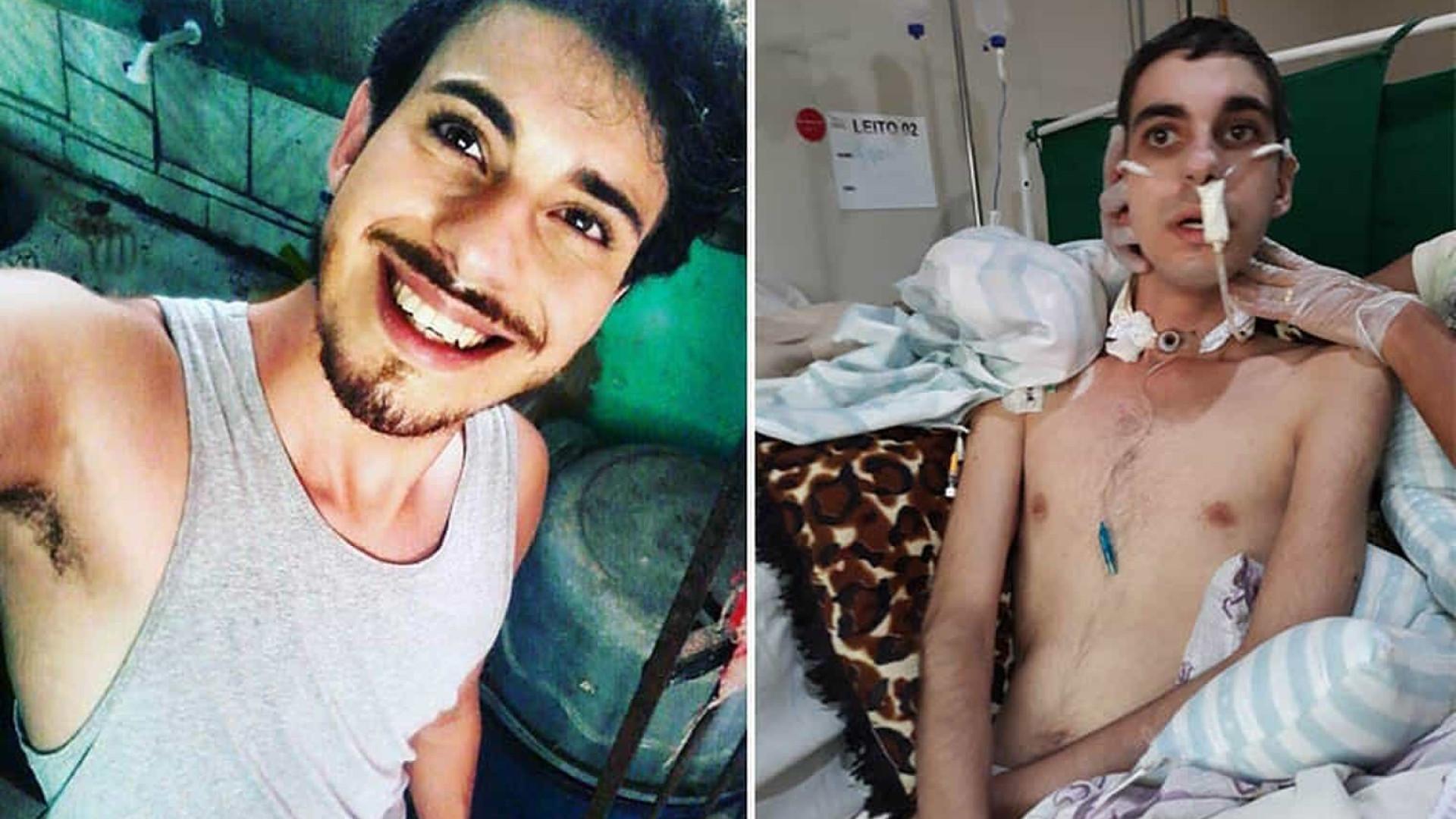 Polícia prende suspeito de brutal ataque homofóbico em PE