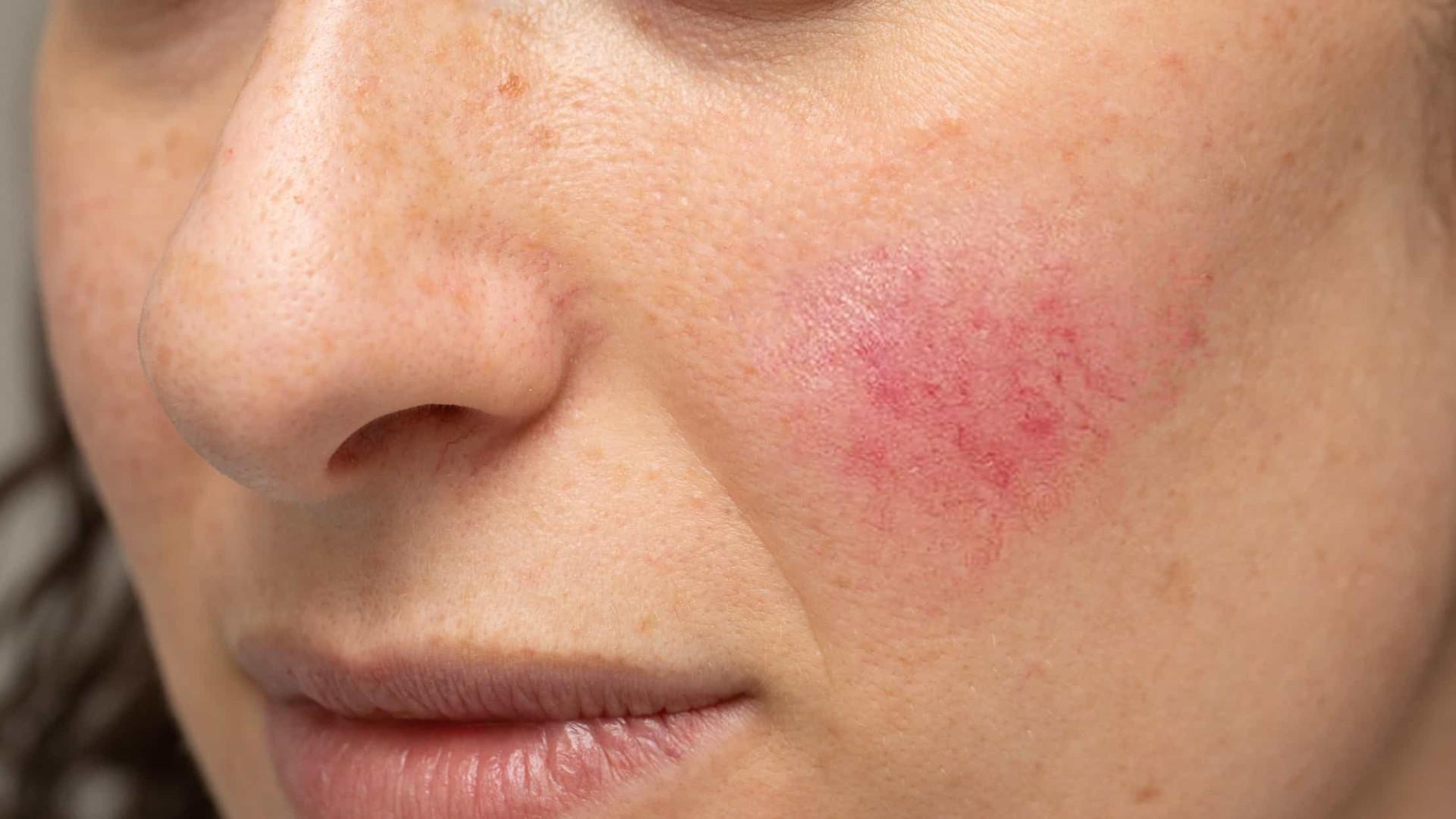 Saiba tudo sobre a Rosácea, doença vascular crônica e inflamatória