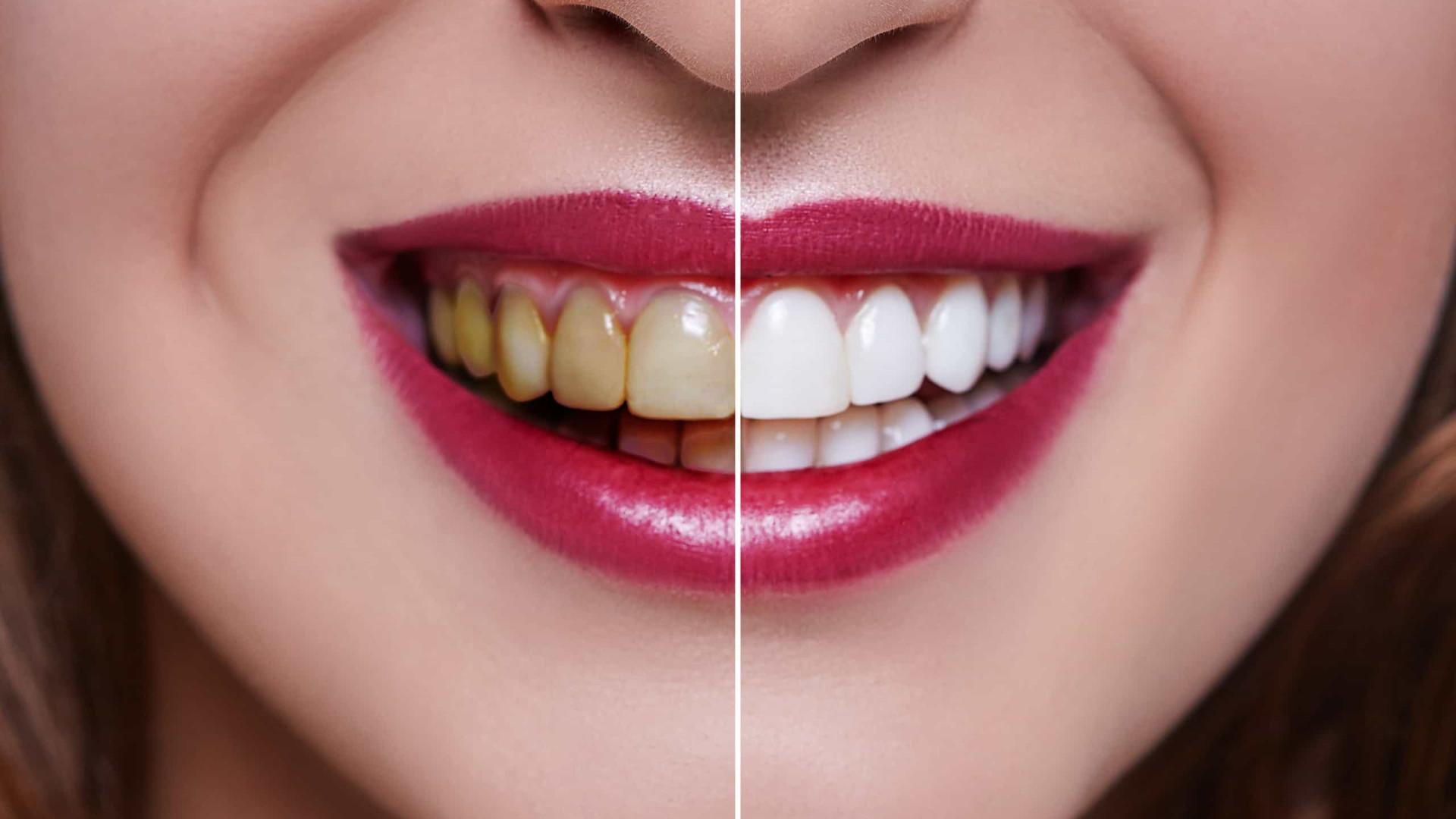 Por que tenho os dentes amarelos e manchados? Quatro causas