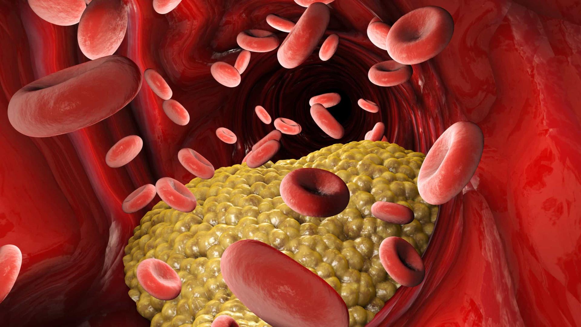 Quatro passos para reduzir os níveis de colesterol em três semanas