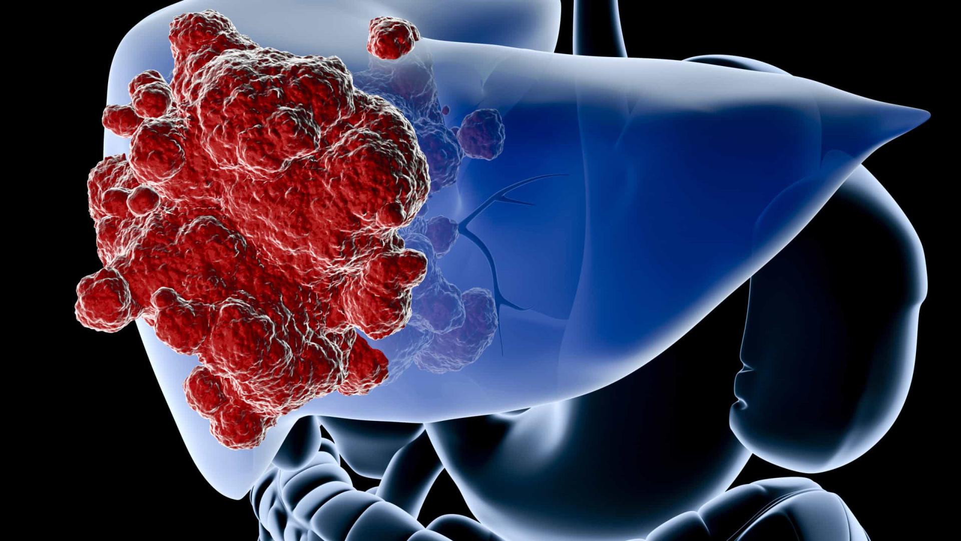 O exercício físico que reduz eficazmente níveis de gordura no fígado