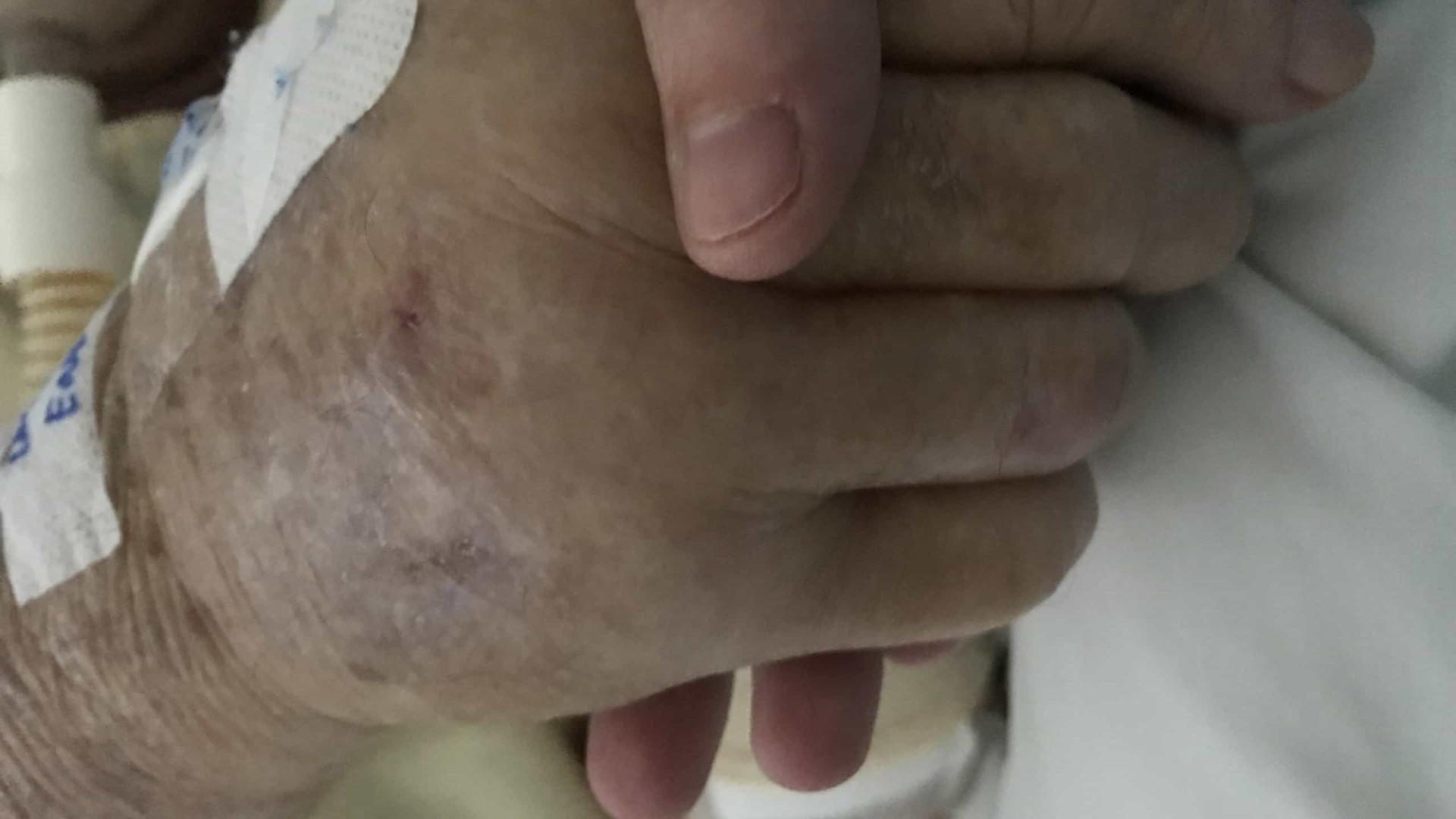 Idosa de 94 anos, diabética e hipertensa, se cura da Covid-19