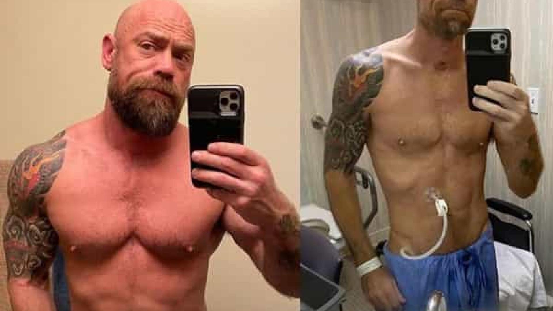 Homem mostra mudança drástica no corpo após Covid-19
