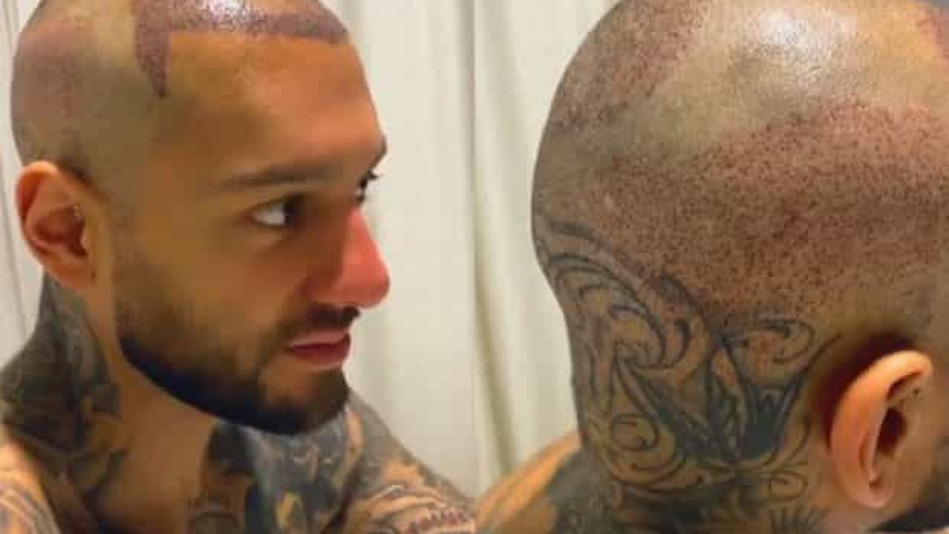 Lucas Lucco aparece careca e revela que fez implante capilar
