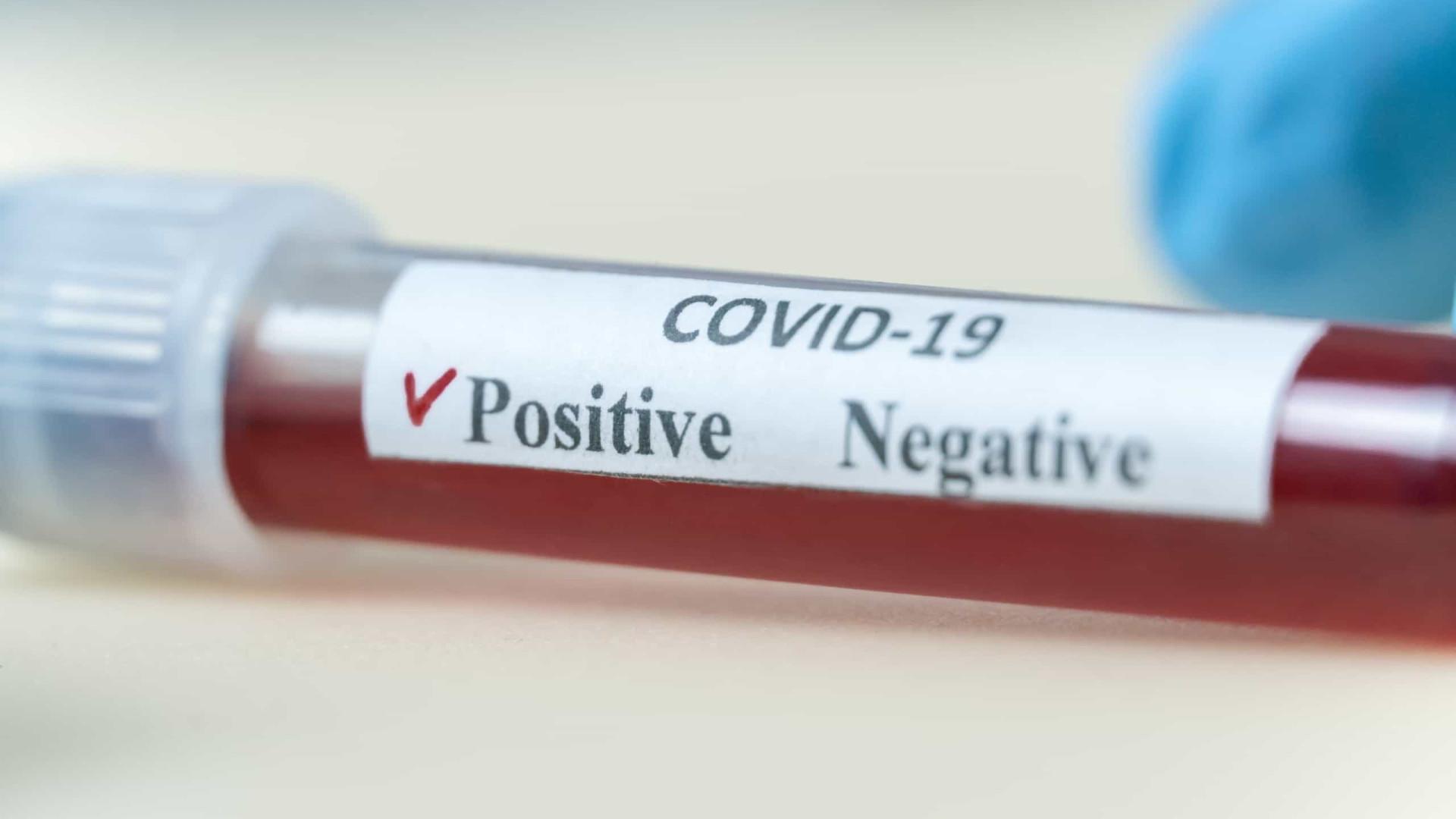 Cientistas criam teste capaz de detectar coronavírus em menos de 5 minutos