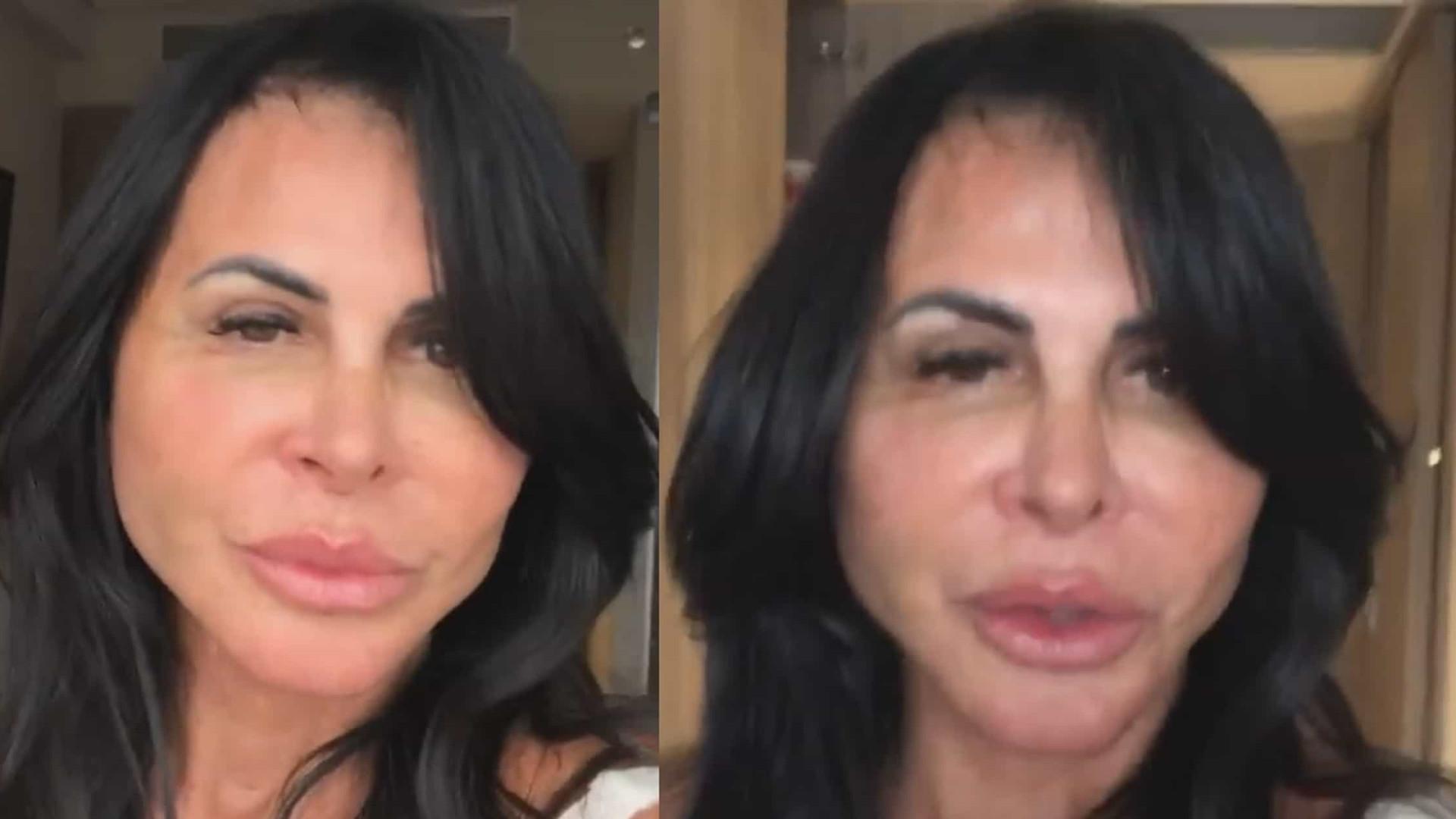 """Gretchen exibe resultado de cirurgia plástica: """"Sem filtro"""""""