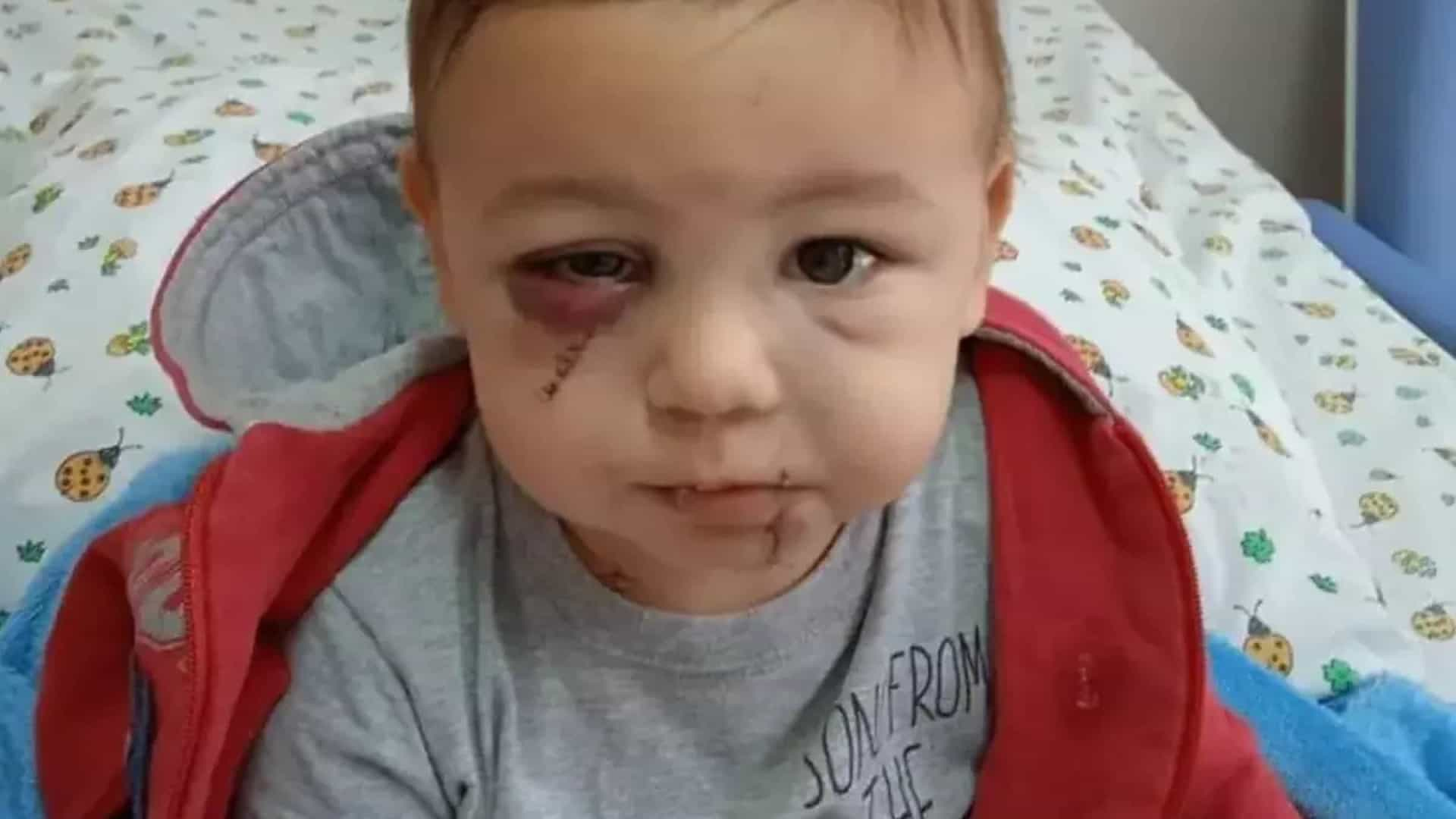 Único sobrevivente de ataque a creche em Saudades (SC), bebê tem alta