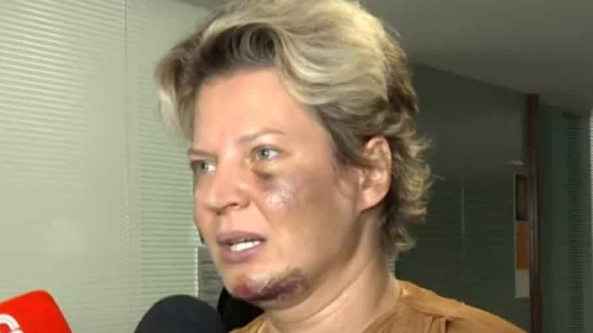 Polícia investiga denúncia de Joice Hasselmann