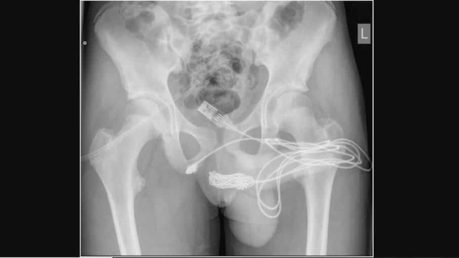 Jovem de 15 anos passa por cirurgia após tentar medir pênis com cabo USB
