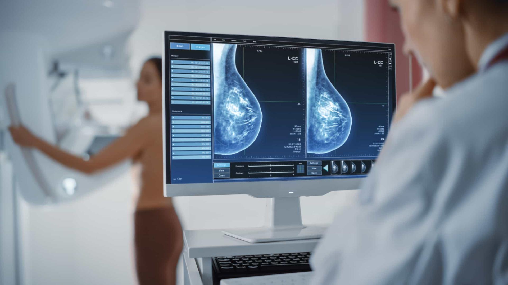 Médicos reforçam importância de fazer mamografia após os 40 anos de idade