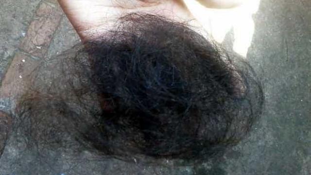 Jovem é agredida até desmaiar e tem parte do cabelo arrancado