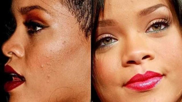 As celebridades que também sofrem de acne
