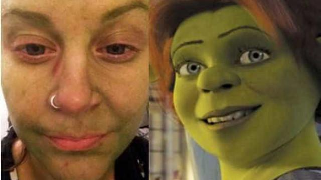 """Mulher fica verde com autobronzeador: """"fiquei parecendo a Fiona"""""""