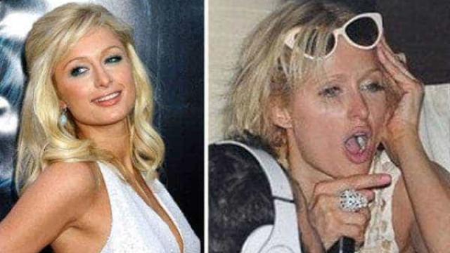 Veja os famosos antes e depois da bebedeira