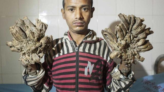 'Homem-árvore' fará 15 operações para se livrar de condição rara