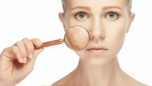 Especialistas alertam: é preciso levar a acne a sério