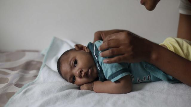 Risco de microcefalia associada  ao zika é estimado entre 1% e 13%
