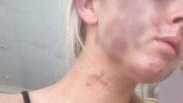 Jovem é torturada após perdir cigarros do namorado