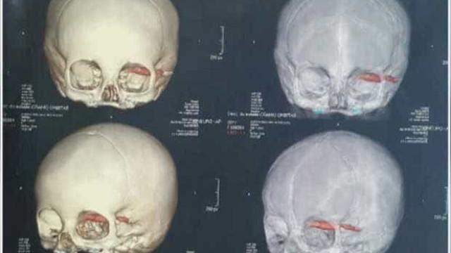 Caneta fica cravada em globo ocular de criança de 1 ano e 11 meses