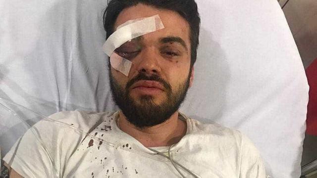 Jogador argentino é agredido por ser gay