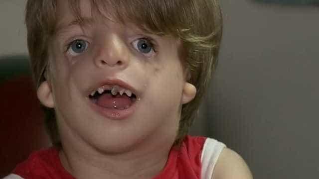 'Vaquinha' ajuda menino com síndrome igual ao filme 'Extraordinário'