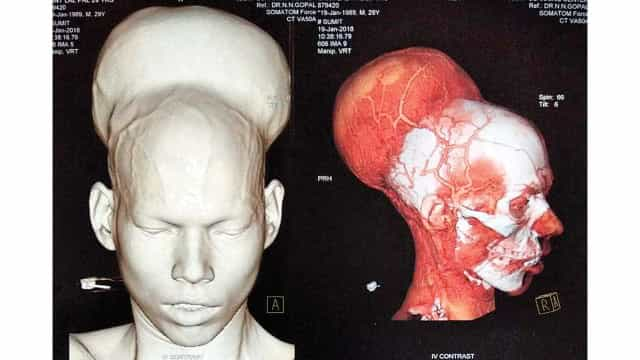 Médicos retiram 'maior tumor do mundo' em paciente na Índia