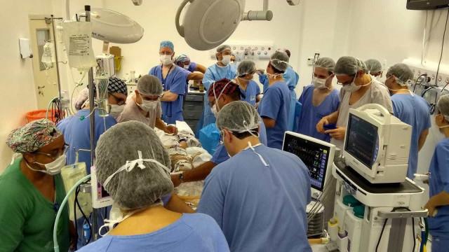 Gêmeas siamesas unidas pela cabeça passam por cirurgia em SP