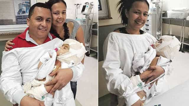 Pais conseguem segurar no colo gêmeas que nasceram unidas pela cabeça